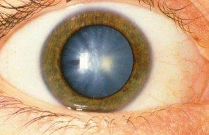 Дагестанские медики предложили новый способ лечения катаракты