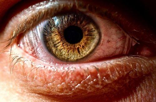 От симптома сухого глаза чаще всего страдают офисные работники и курильщики