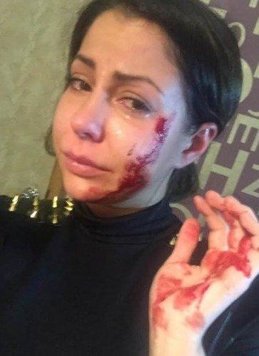 Порнозвезду Елену Беркову избила пьяная женщина