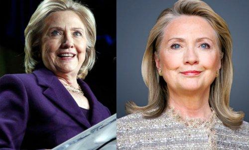 Билл Клинтон заставил супругу лечь под нож хирурга ради политики