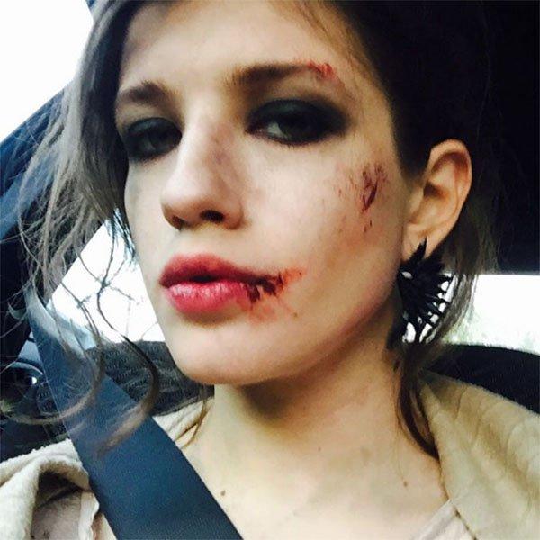28-летняя артистка шокировала фотографией разбитого лица