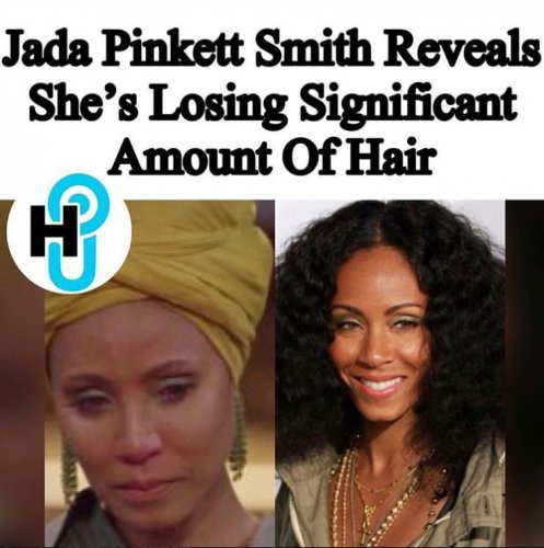 Жена знаменитого голливудского актера теряет волосы из-за измен